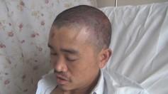 父亲阳金礼做完第一次手术后